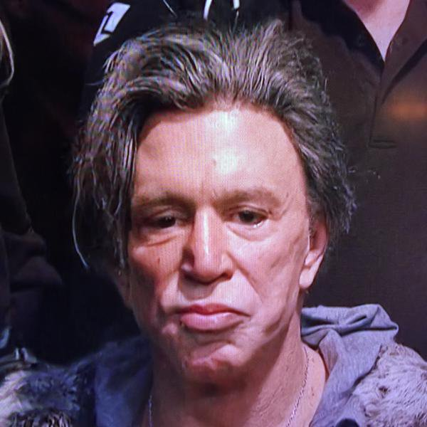 Mickey Rourke Face Transplant